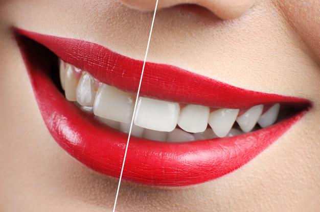 Sbiancamento denti, Parenzo