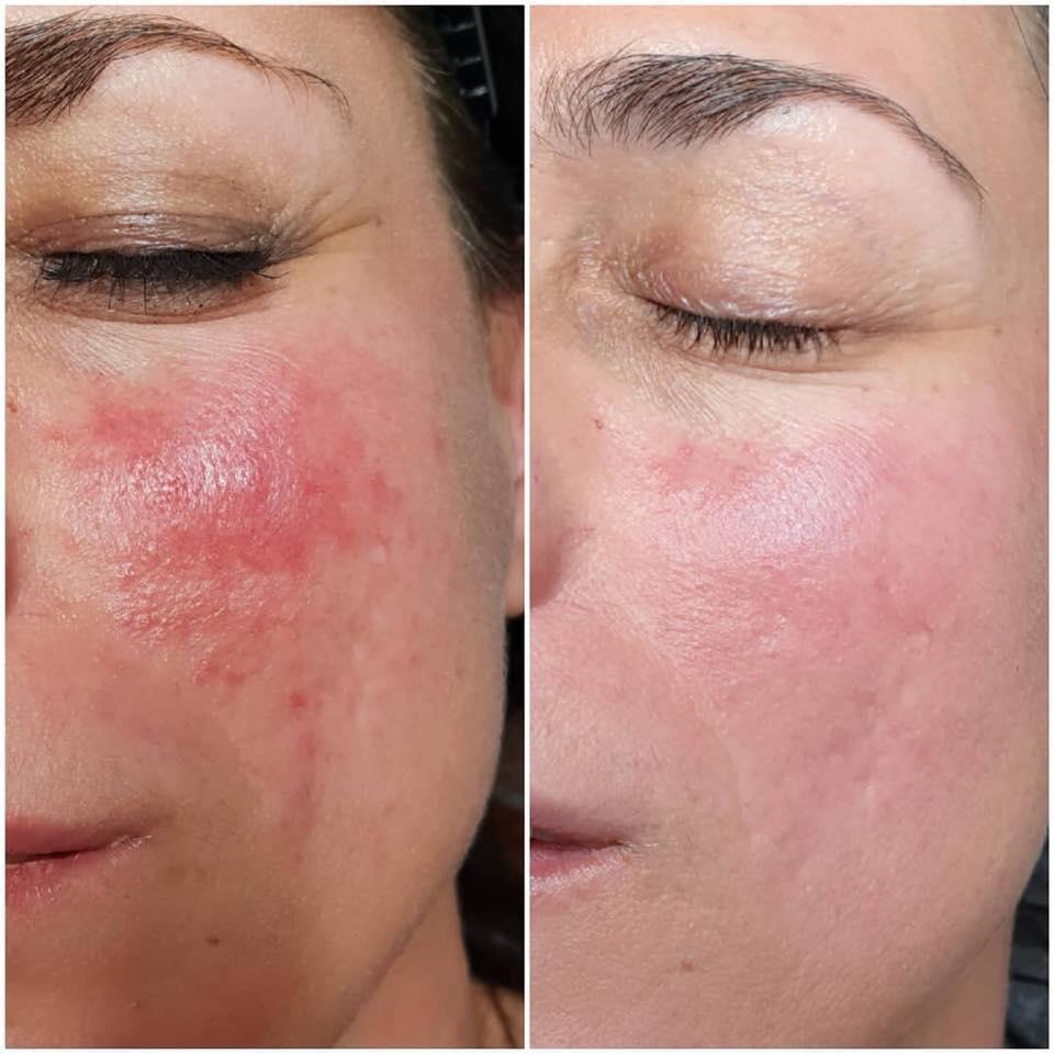 Uklanjanje ožiljaka od akni, Pula, Beauty centar Bliss
