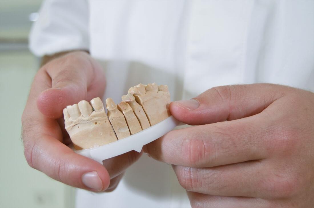 Zubni implantati, zubne krunice