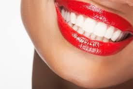 Keramičke ljuskice, ortodoncija Umag Istra