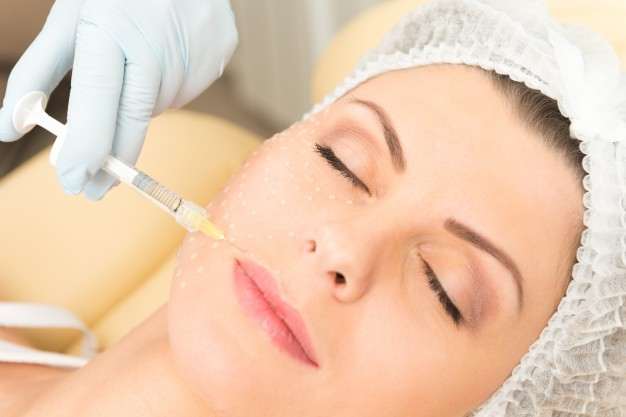 Fileri - Botox Poreč