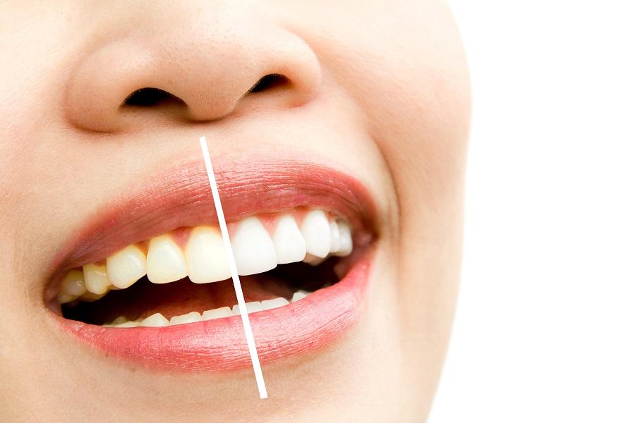 B-Smile, Žminj, keramičke ljuskice za zube, savršen osmijeh
