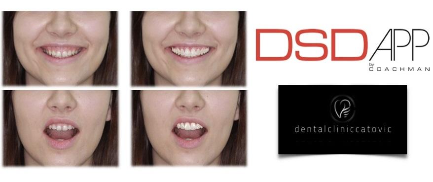 stomatološka ordinacija dr. Ćatović, Pula. digital smile design