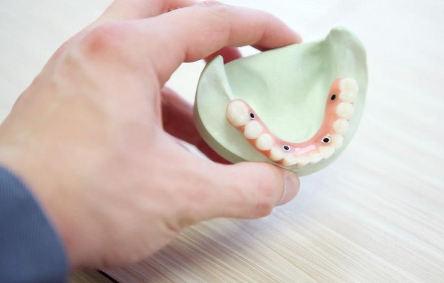Zubni implantati Poreč