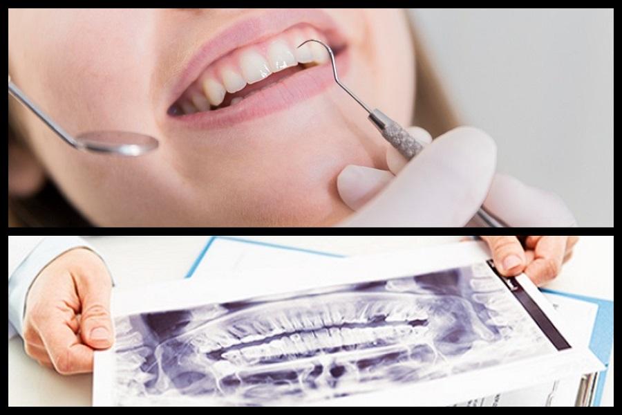 Microdental ordinacija dentalne medicine, Pula, CBCT