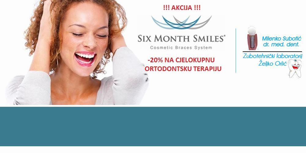 20% popusta na six month smile kod dr. Subotića - SUBOTIĆ/ORLIĆ